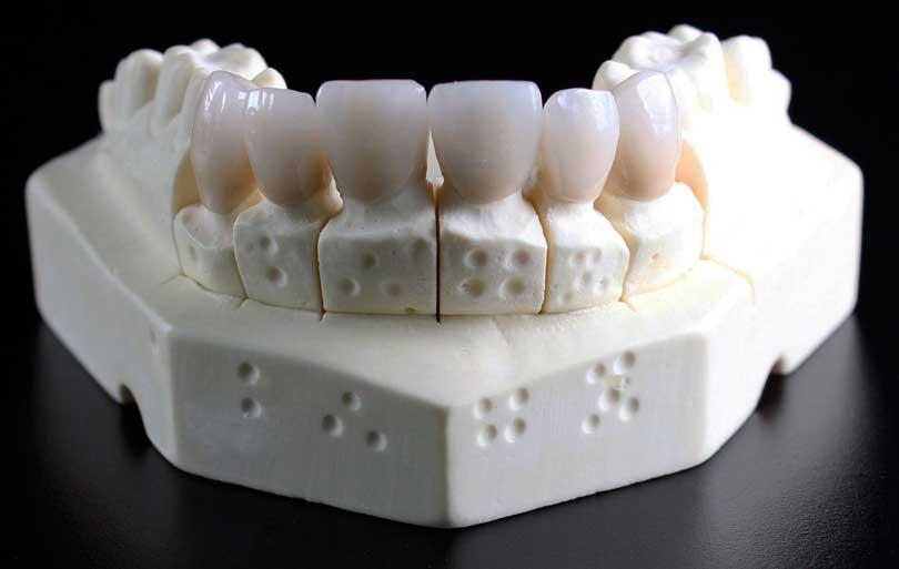 Composición química de los dientes humanos