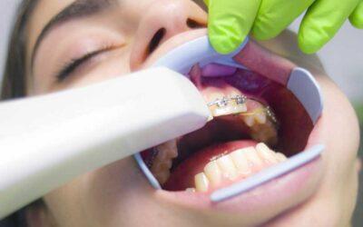Los músculos de la boca y sus funciones
